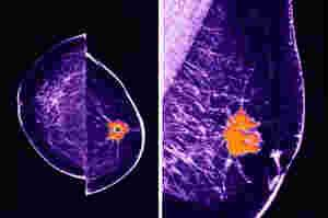 Comprehensive Review of Breast Imaging: World Class CME and Oakstone Clinical Update