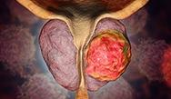 Advances in the Treatment of Prostate Cancer