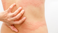 Taking an Aggressive Approach to the Management of Chronic Urticaria