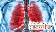 Idiopathic Pulmonary Fibrosis: Optimizing the Diagnosis and Management