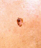 Skin Cancer Education for Primary Care