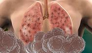 Individualize the Treatment of Interstitial Lung Disease